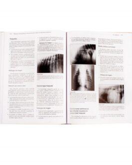 Manual de Diagnóstico por Imagen del Tórax